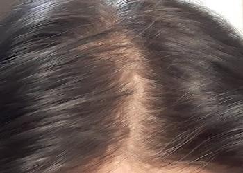 薄毛の分け目